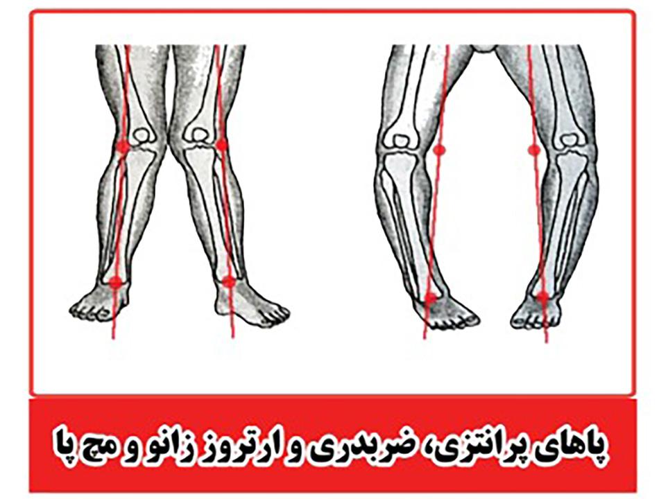پاهای پرانتری، ضربدی و ارتروز زانو و مچ پا